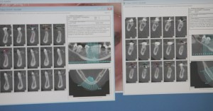 Dental implant X-rays