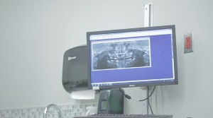 3D scanner results